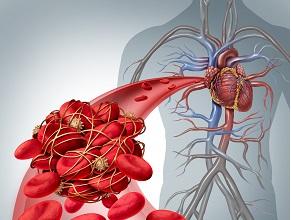 Діагностика венозної тромбоемболії. Обговорення настанов American Society of Hematology 2018