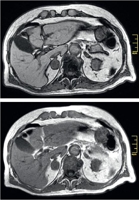 МРТ-зображення— відсутність зниження сигналу впротифазі