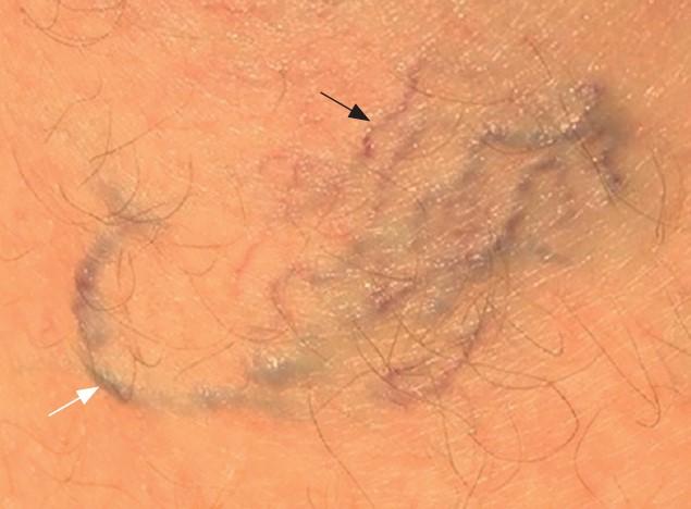 Телеангіектазії (т. зв. судинні зірочки; чорна стрілка) — це дрібні розширені поверхневі вени 3Ретикулярні варикозно розширені вени (біла стрілка) мають діаметр 1–3 мм.