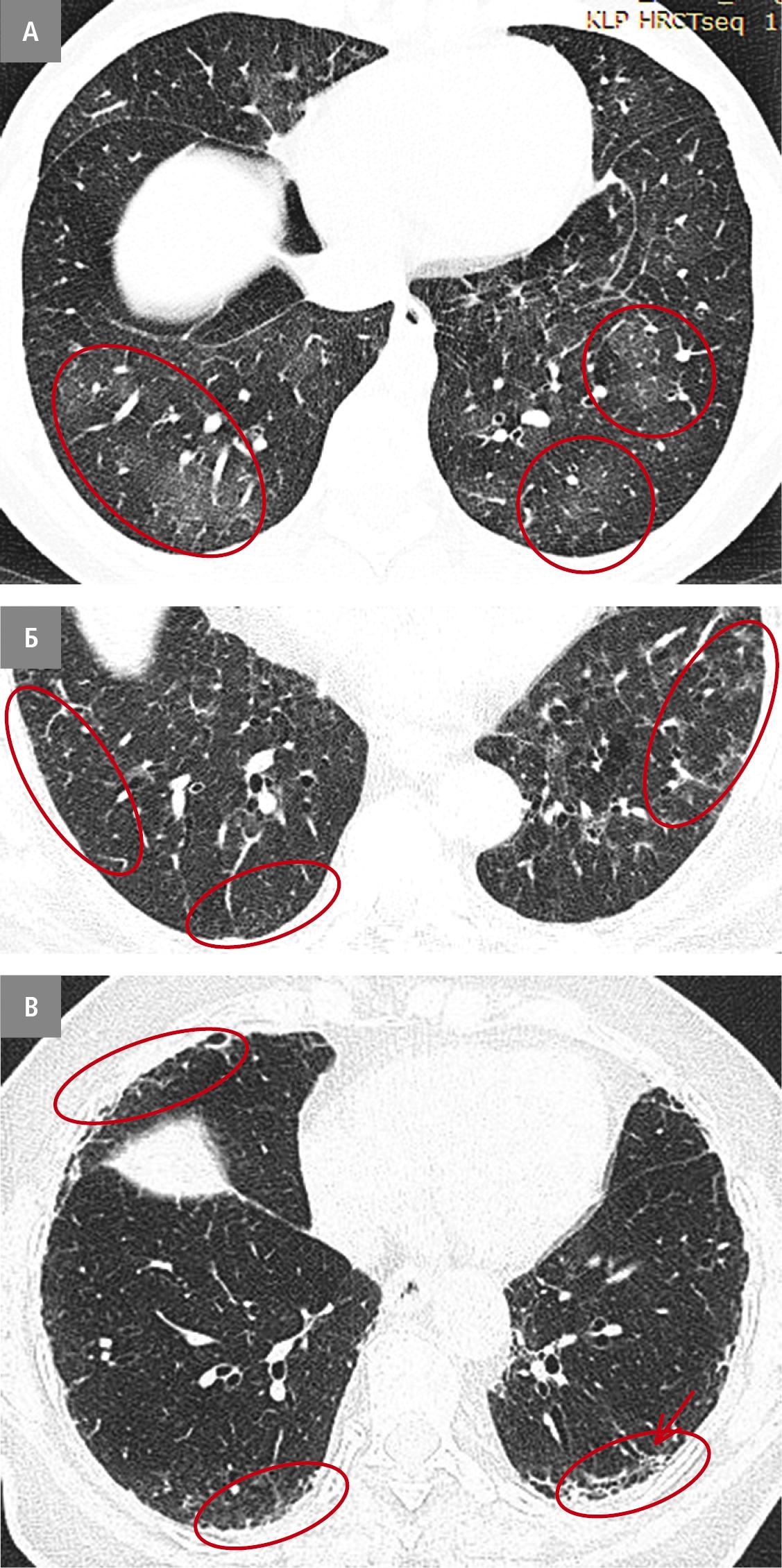 Види ІЛА. А — несубплевральний (червоні овали). Б — субплевральний без фіброзу (червоні овали). В — субплевральний зфіброзом паренхіми легень (овали — ділянки стільникової легені; стрілка — бронхоект