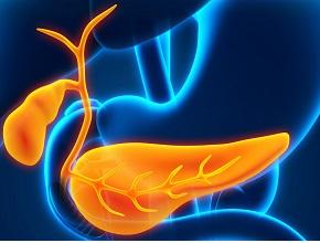 Захворювання підшлункової залози — досягнення 2019. Гострий панкреатит