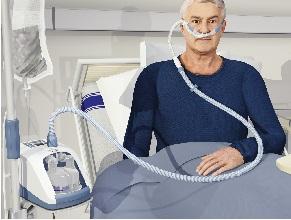 Інтенсивна терапія. Високопоточна назальна оксигенотерапія — практичне керівництво