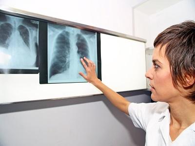 Діагностика туберкульозу удорослих. Підсумок клінічних настанов ATS, IDSA іCDC 2017. 1-ша част. Діагностування латентної туберкульозної інфекції.