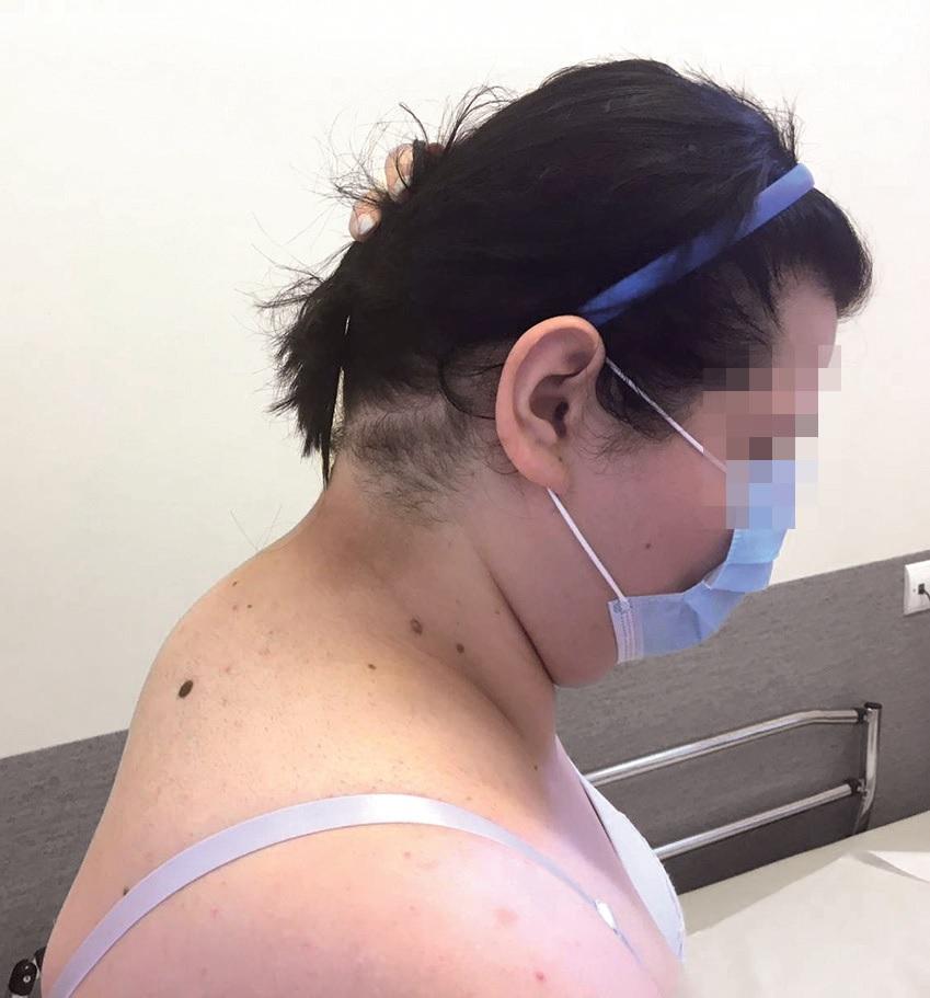 Пацієнтка знакопиченням жирової тканини вділянці потилиці танадключичній ділянці, яке дозволяє запідозрити синдром Іценка-Кушинга
