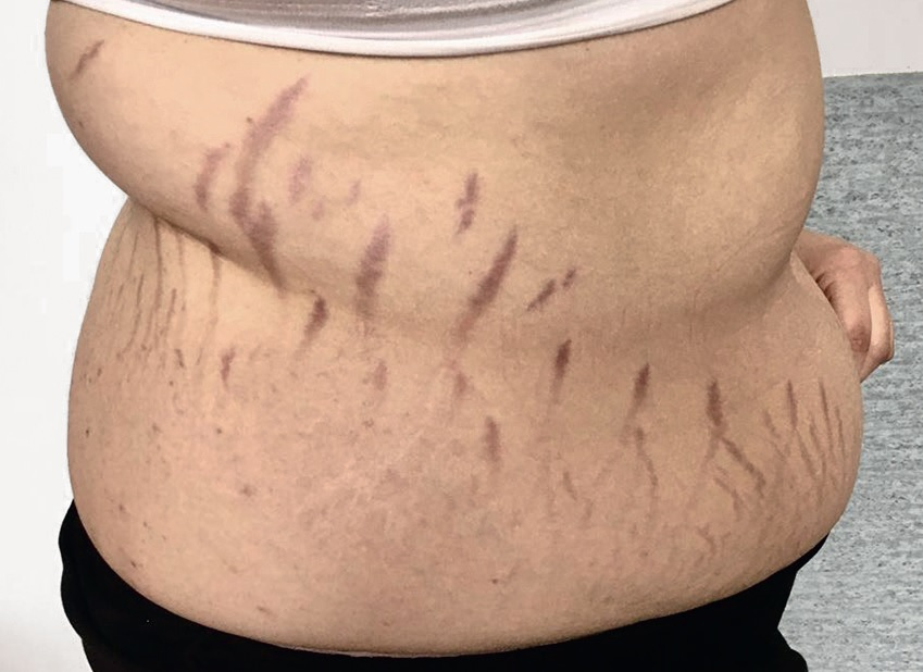 Яскраво-червоні стрії на шкірі впацієнтки зпідозрою на синдром Іценка-Кушинга