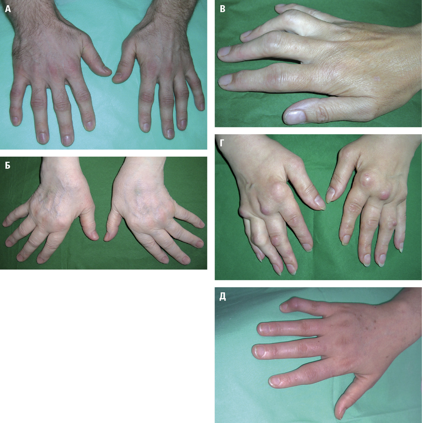 Ревматоїдний артрит. А – ранні зміни – симетричний набряк п'ястно-фалангових iпроксимальних міжфалангових суглобів.Б – ульнарна девіація пальців рук іпідвивих п'ястно‑фалангових суглобів.В – верет