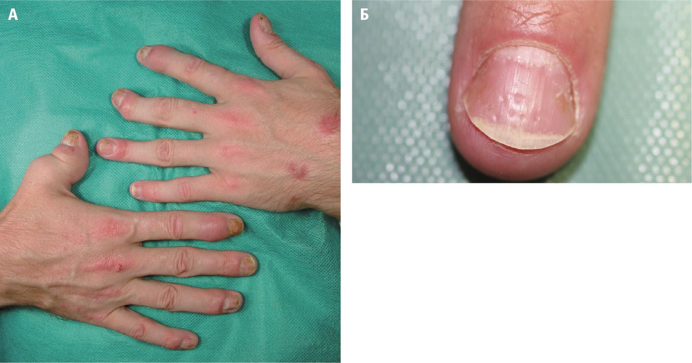 Псоріатичний артрит.А – псоріатичні зміни на шкірі тильних поверхонь рук, «телескопічний» І палець правої руки, характерне ураження дистальних міжфалангових суглобів обох рук, підвивих дистальної фал