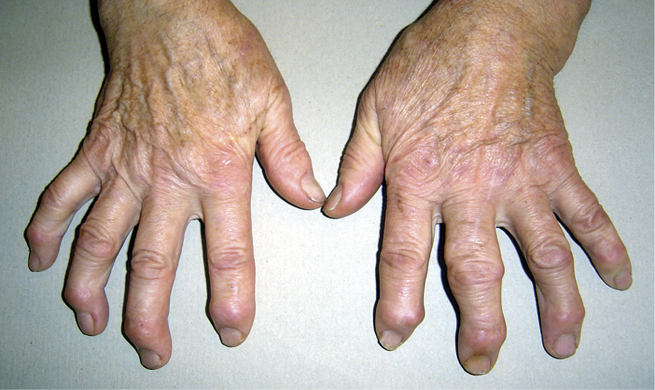 Остеоартроз – вузлики Гебердена (над дистальними міжфаланговими суглобами) більшості пальців обох рук, вузлик Бушара (над проксимальним міжфаланговим суглобом) III пальця лівої руки.