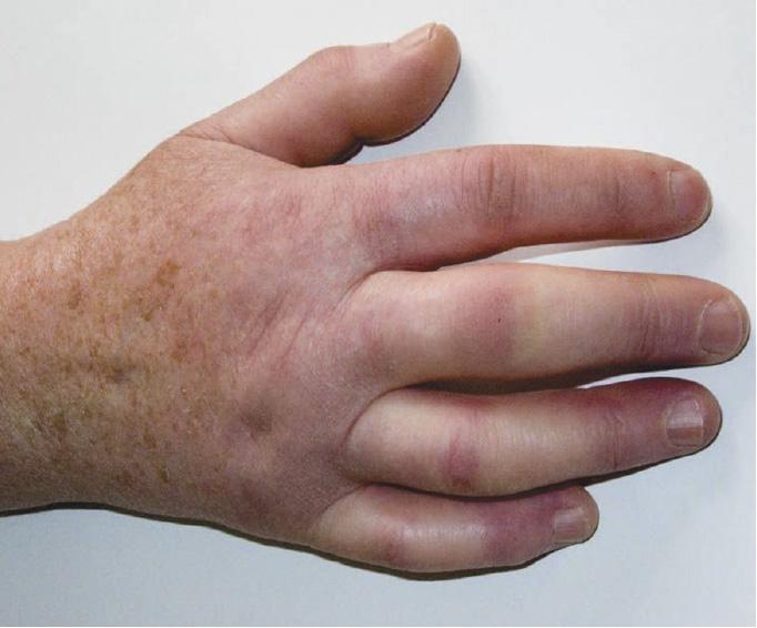 Системна склеродермія – блискуча, затверділа шкіра на пальцях, заважає їх повному згинанню тарозгинанню (симптом тісної рукавички).