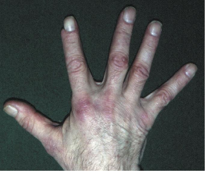 Поліміозит i дерматоміозит. Еритематозно-синюшні папули над міжфаланговими і п'ястно-фаланговими суглобами (папули Готтрона).