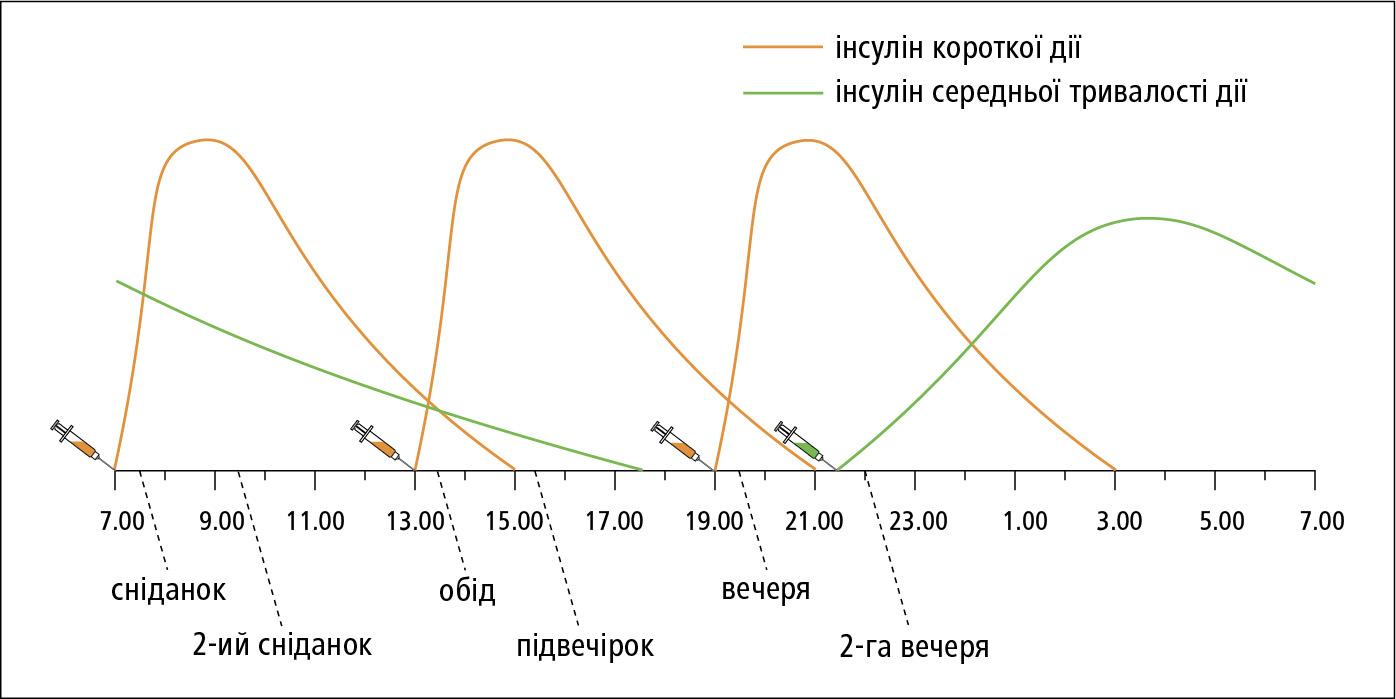 Інтенсивна інсулінотерапія усхемі 4-ох ін'єкцій на день: інсулін короткої дії укомбінації зінсуліном середньої або довготривалої дії (NPH)