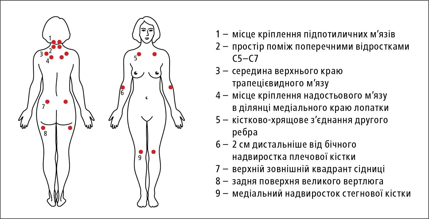 Чутливі точки при фіброміалгії