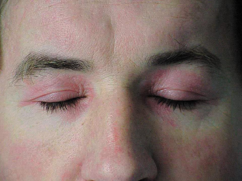 ПМ/ДМ— геліотропна еритема навколо очей