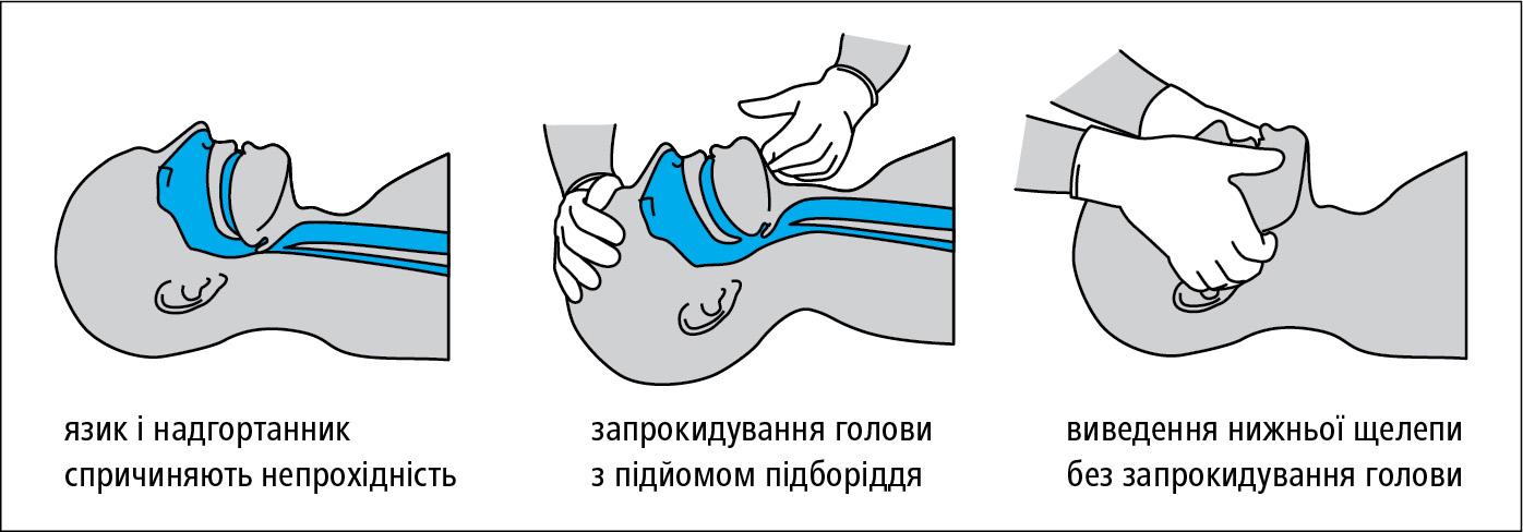 Відновлення прохідності дихальних шляхів (також →мал. 23.8-2)