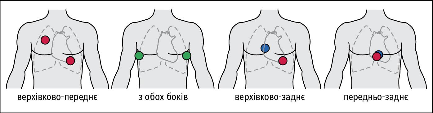 Рекомендоване розташування електродів для дефібриляції. Положення на передній поверхні грудної клітки (червоний), бічній (зелений) іна задній (голубий)