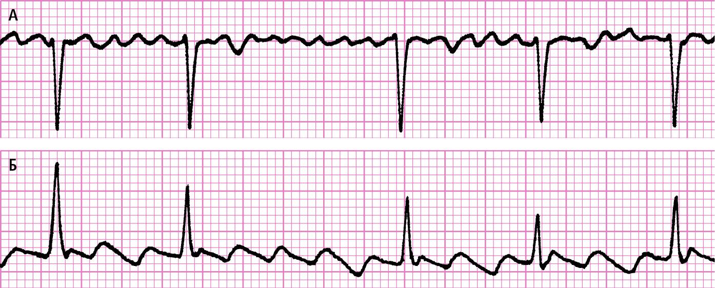А— поліморфні хвилі f замість зубців Р під час фібриляції передсердь. Б— мономорфні двофазні хвилі F замість зубців Р під час тріпотіння передсердь