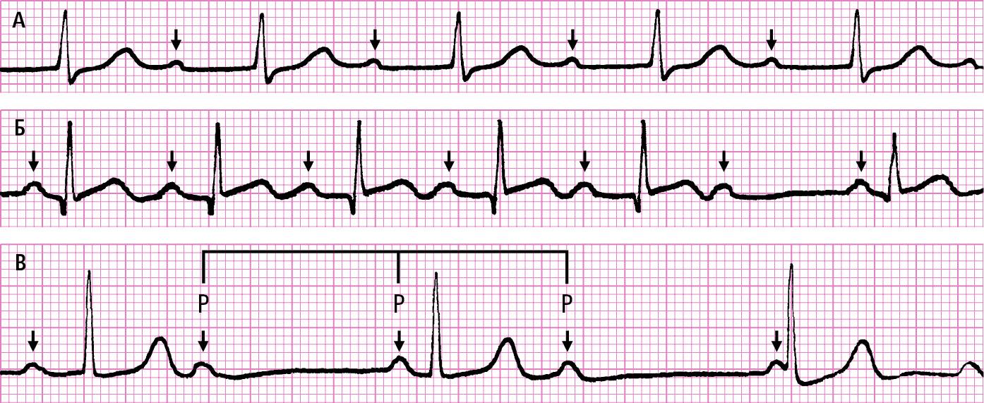 АВ-блокади. А — подовження інтервалу PQ (АВ-блокада Iст.). Б — випадіння комплексу QRS, якому передувало поступове подовження наступних інтервалів PQ (АВ-блокада ІІ ст. типу Венкебаха). В — хаотична