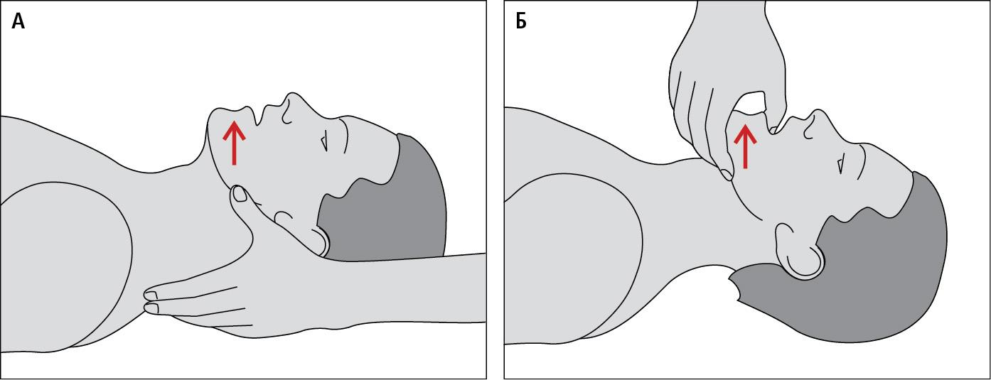 Відновлeння прохіднoстi дихальних шляхів: методом A— висування щелепи вперед, Б — відтягування щелепи зa зуби допереду (пiдняття щелепи)