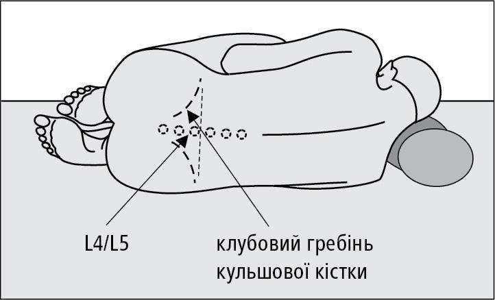 Правильне положення пацієнта під час люмбальної пункції тавизначення міжхребцевого проміжку L4/L5.
