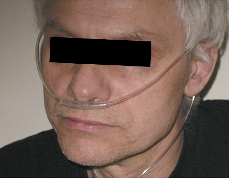 Носові канюлі