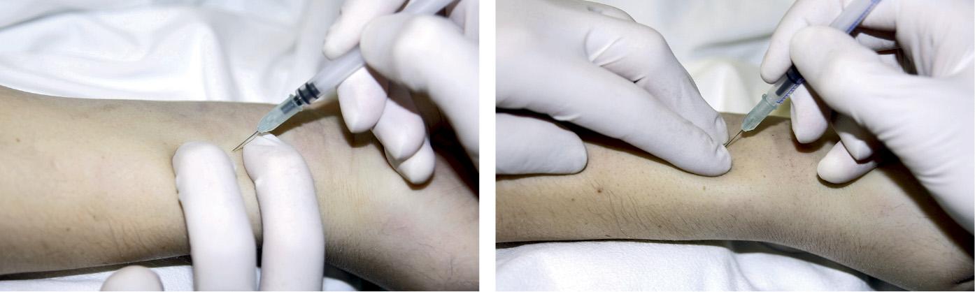 Способи пункції променевої артерії для забору крові на газометричне дослідження