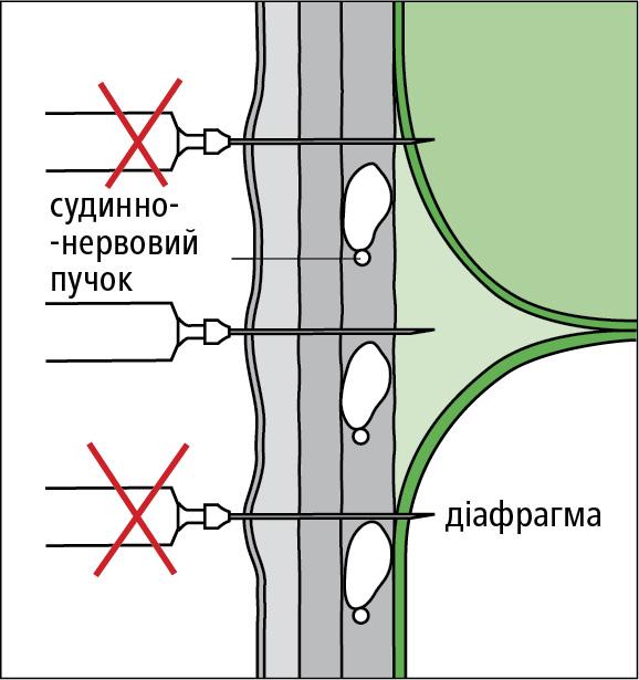 Схема правильного виконання пункції плевральної порожнини