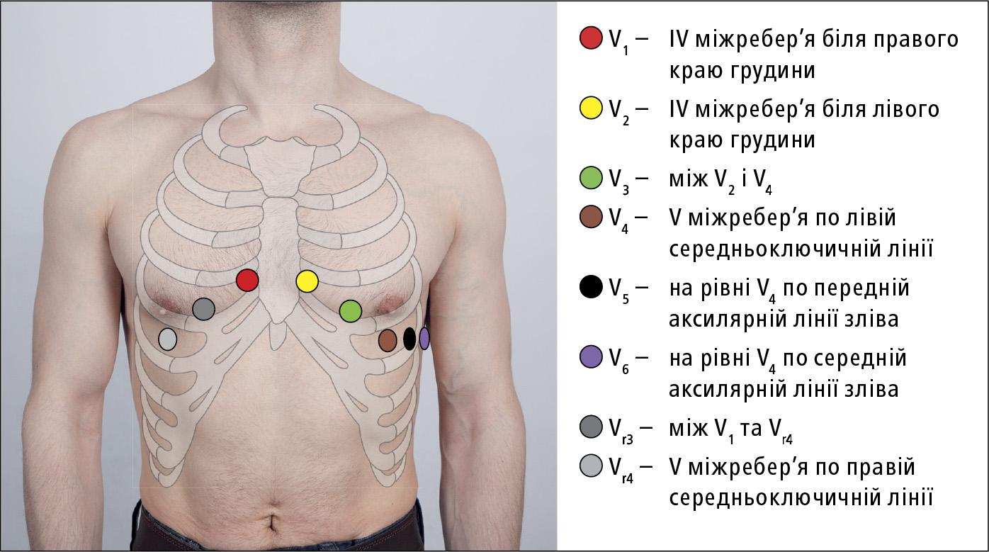 Розташування електродів ЕКГ