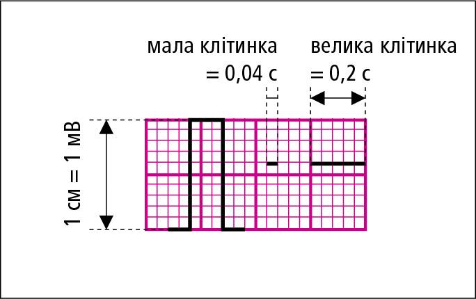 Використання міліметрової сітки для визначення тривалості (при стандартній швидкості руху стрічки 25 мм/с) іамплітуди окремих морфологічних елементів електрокардіограми