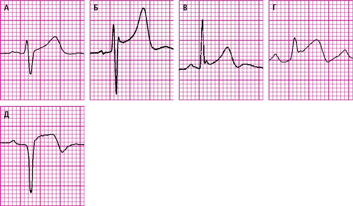 Елевація сегментів ST. A— фізіологічна, косовисхідна.Б— елевація точки J із увігнутою елевацією сегмента ST при синдромі ранньої реполяризації шлуночків.В— синдром ранньої реполяризації із зазубр