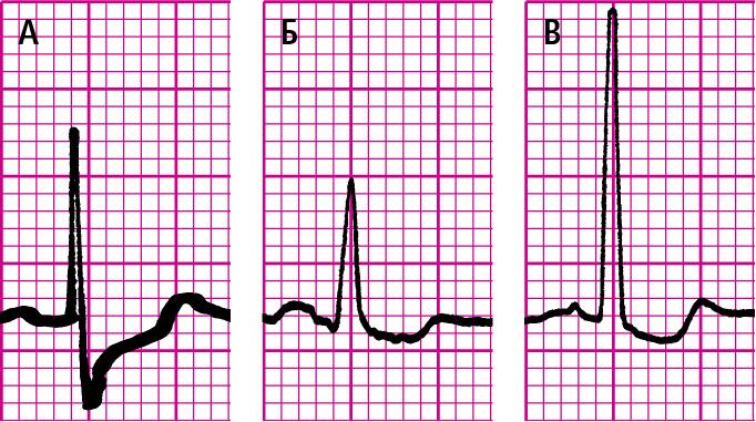 Депресія сегментів ST. A— косовисхідна.Б— горизонтальна.B— косонизхідна