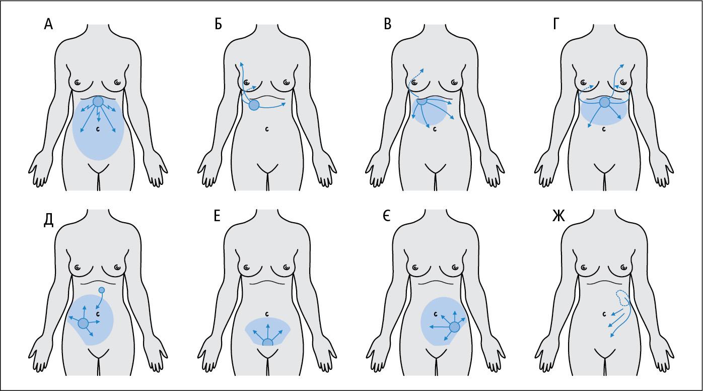 Характер болю там'язовий захист при деяких захворюваннях, що супроводжуються паралітичною кишковою непрохідністю: перфорація пептичної виразки (A), печінкова коліка (Б), гострий холецистит (B), гостр