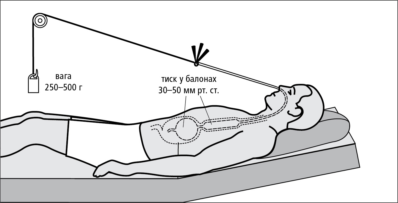 Схема правильного встановлення зонду Сенгстакена-Блекмора
