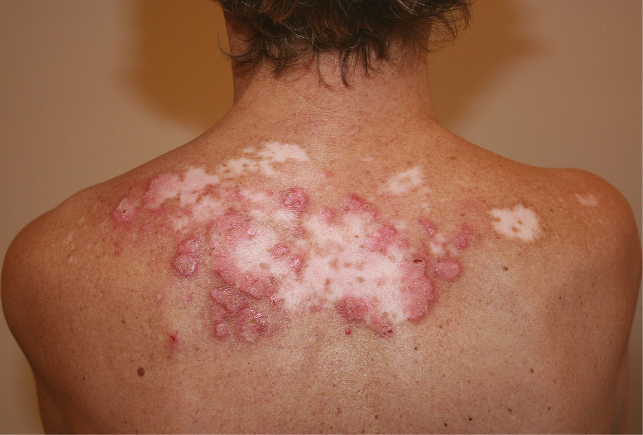 Figure 001_7251.  Discoid lupus erythematosus. Well-demarcated lesions with erythema, swelling, scarring, and central atrophy.