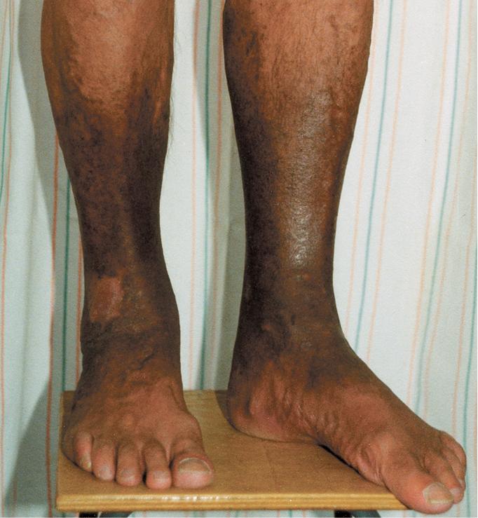 Chronic Venous Insufficiency - Venous Diseases - Vascular ...