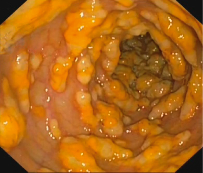 Figure 031_1211.  Endoscopic appearance of pseudomembranous colitis.