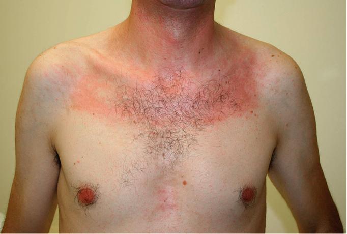 Polymyositis and Dermatomyositis - Rheumatology - Diseases