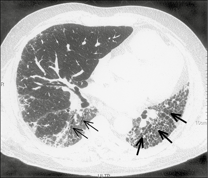 Figure 031_2_1627.  Idiopathic pulmonary fibrosis. A high-resolution computed tomography scan with reticular opacities, traction bronchiectasis (thin arrows), and honeycombing (thick arrows).