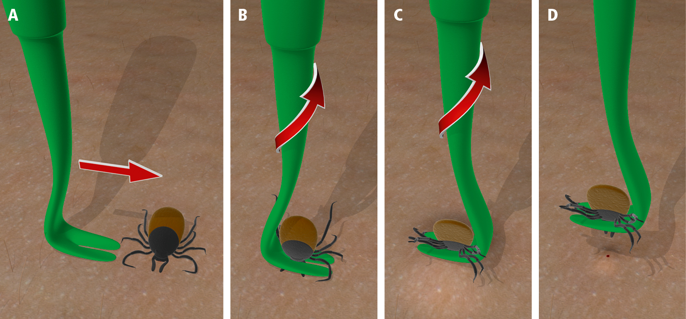 Figure 031_2_5332.  Tick removal using a plastic hook: A, B, slide the hook between the skin and the tick, keeping it as close to the skin as possible, C, until the tick is caught between the prongs. D, gently lift the hook while rotating it 2 to 3 times around its longer axis.