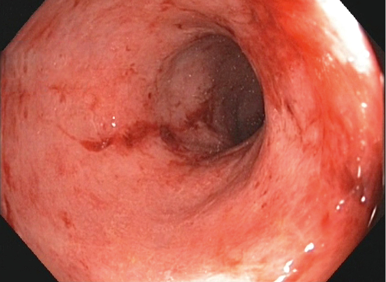 Figure 031_2_6079.  Endoscopic findings in moderate ulcerative colitis. Absent vascular pattern and loss of haustration. The mucosa is friable and bleeds on contact with the endoscope.