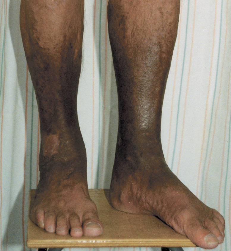 Figure 031_2_6138.  Rusty-brown discoloration of the skin in chronic venous insufficiency.