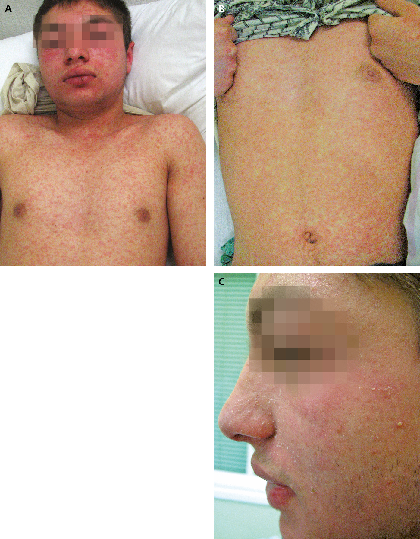 Figure 031_2_7651.  Measles.  A , eruptions on the face and trunk on day 2 after the onset of rash.  B , eruptions on the trunk on day 3 after the onset of rash.  C , bran-like desquamation on the face following resolution of rash.