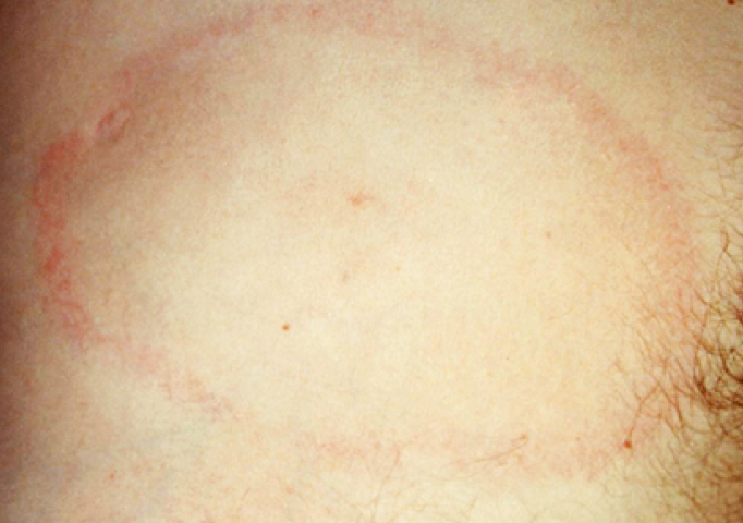 Figure 031_2_8938.  Typical features of erythema migrans, a sign of the early phase of Lyme borreliosis.