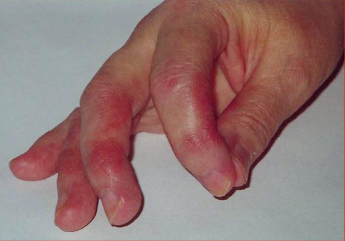 Figure 031_2_9764.  Thyroid acropachy.