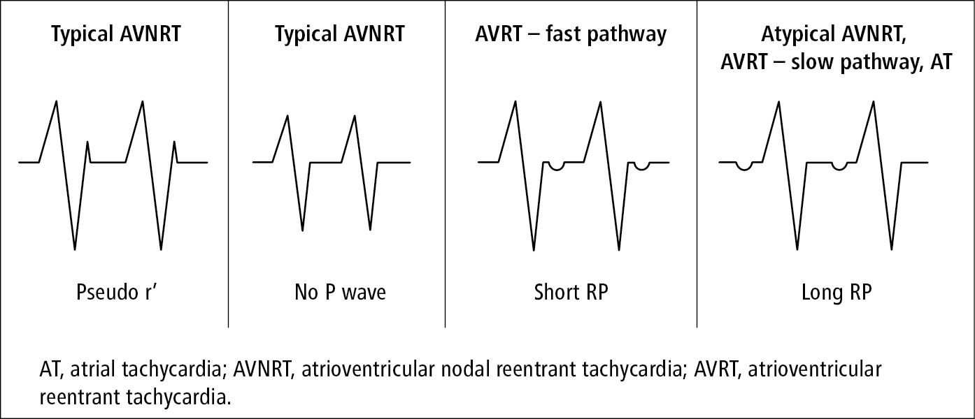 Figure 031_4284.  Differential diagnosis of supraventricular tachycardia based on the relationship of P waves and QRS complexes.