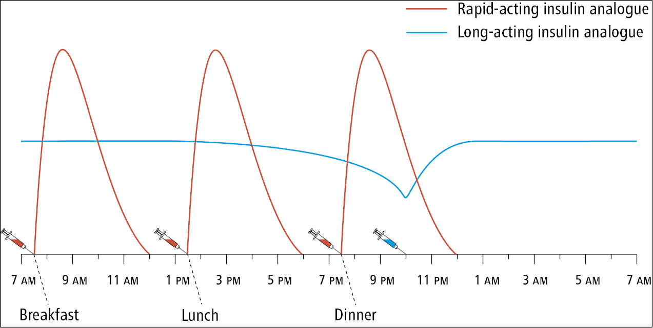 Figure 031_4_0677.  Intensive insulin therapy regimen with 4 insulin injections a day: a rapid-acting insulin analogue combined with a long-acting insulin analogue.