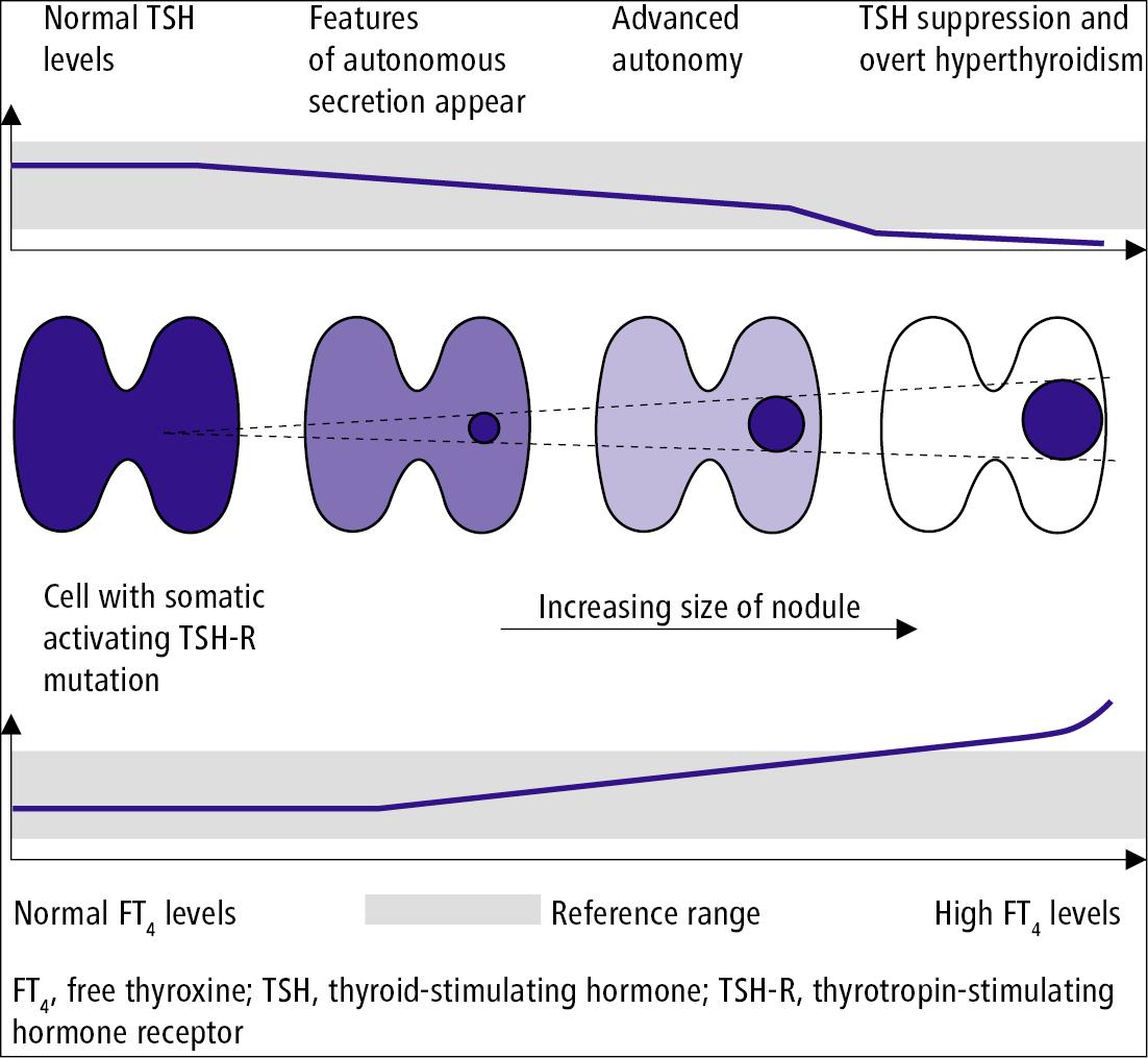 Figure 031_4_2551.  Development of an autonomously functioning thyroid nodule.