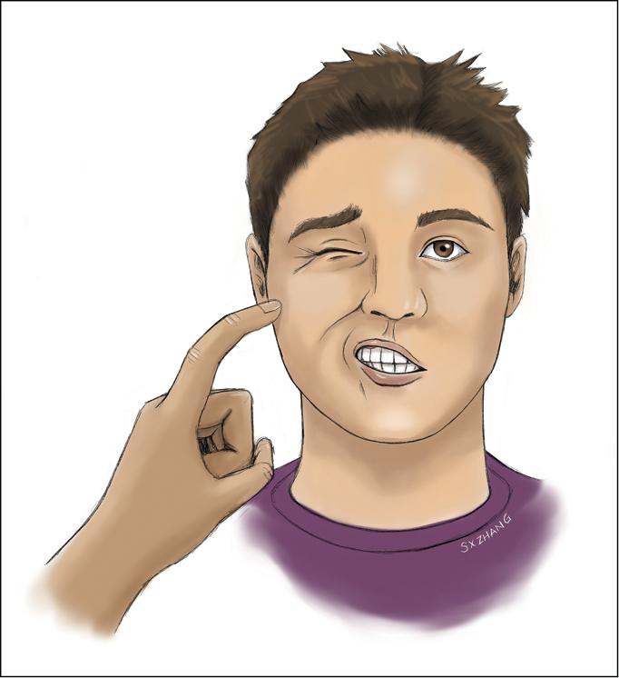 Figure 031_4_4998.  Chvostek sign.  Illustration courtesy of Dr Shannon Zhang.