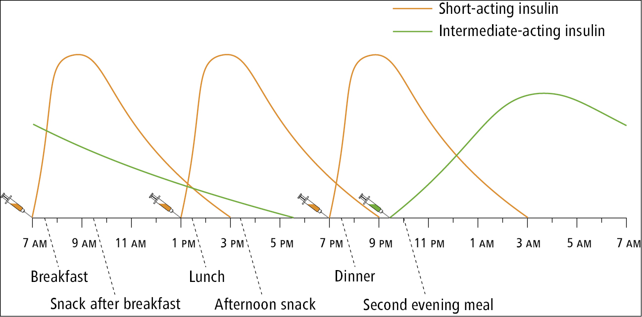 Figure 031_4_9616.  Intensive insulin therapy regimen with 4 insulin injections a day: a short-acting insulin combined with an intermediate-acting insulin (neutral protamine Hagedorn).