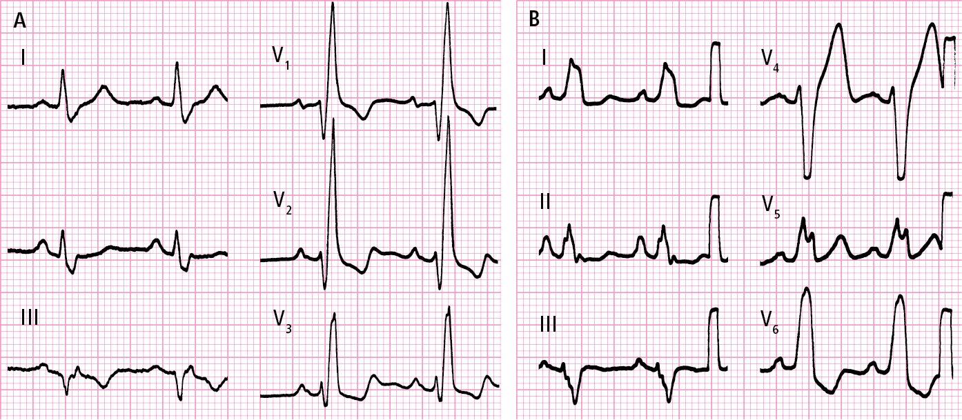 Figure 031_8192.   A , right bundle branch block.  B , left bundle branch block.