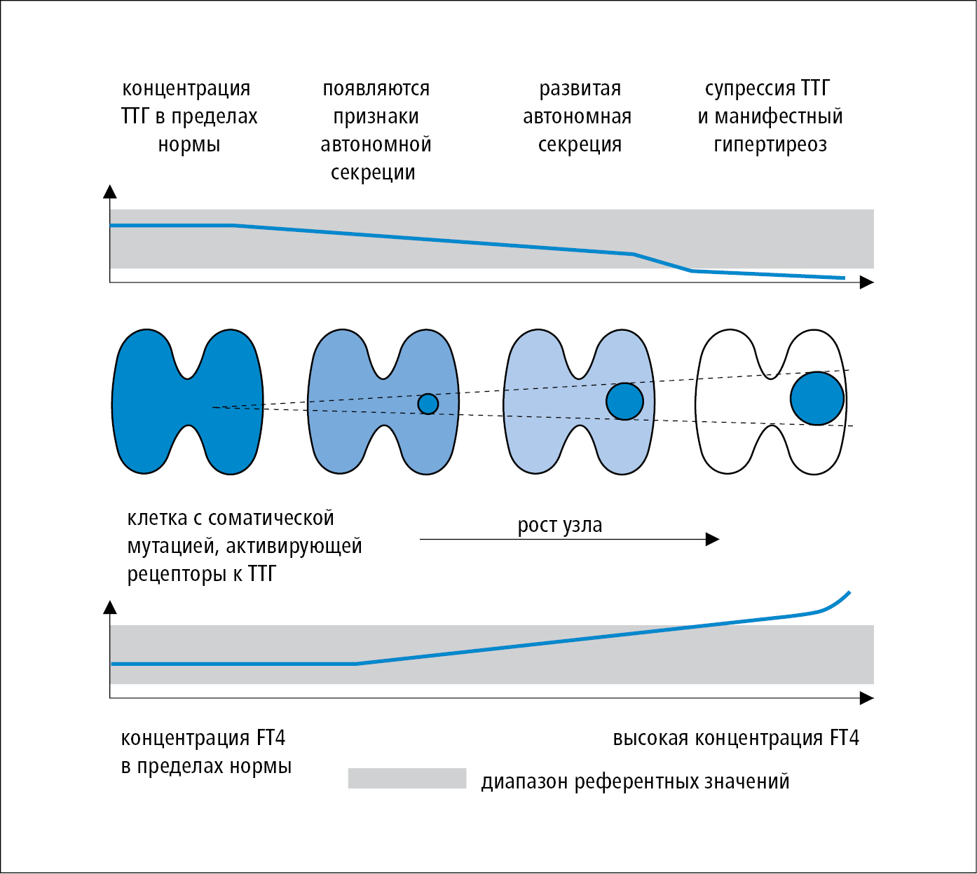 Динамика развития автономного узла щитовидной железы